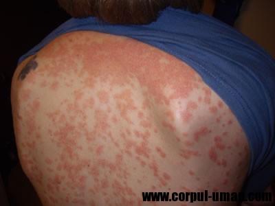 crema pentru dermatita atopica copii fericiti-imagini