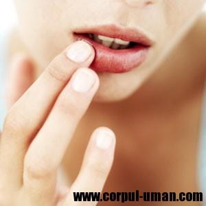 Buze crapate - tratament