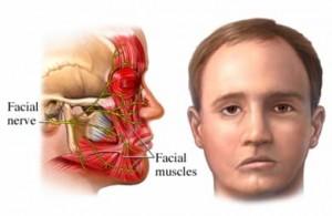 Paralizia faciala