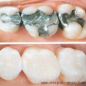 Plombe dentare riscuri