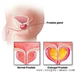 Prostata: tratament naturist