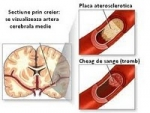 Despre Accidentul Vascular Cerebral – Cauze si tratamente