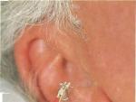 Metode de Acupunctura