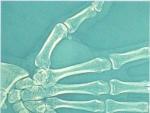 OASELE ARTICULAŢIEI MÂINII – Oasele corpului uman