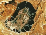 OSTEOBLAST, OSTEOCIT, OSTEOCLAST, OSTEOCLASTOM, OSTESOCLAZIE- Definitie Medicala