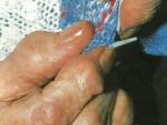 OSCIOARE OSMORECEPTOR, OSTEOATRITĂ, OSTEOARTROPATIE, OSTEOARTROTOMIE – Definitie Medicala