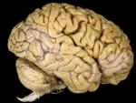 Creierul – corpul uman organe interne