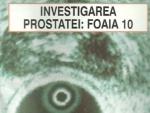Despre Prostata