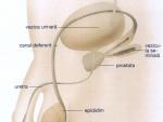 Inflamatia Prostatei – Simptome, Cauze , Tratament