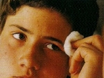 Acneea-Tratament