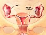 Ovarul – anatomie