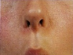 Muschii obrazului si ai buzelor