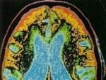Tehnici de investigaţie în neurochirurgie