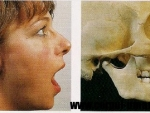 Luxatie de mandibula