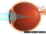 Miopia – defect de vedere