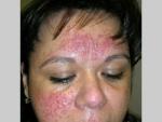 Rozaceea – afectiune a pielii