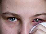 Conjunctivita – tipuri si tratamente