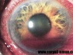 Socurile si traumele ochiului