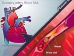 Cum evitati formarea cheagurilor de sange din organismul dvs.