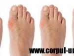 Tratament pentru ciuperca piciorului
