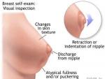 Recomandari noi pentru prevenirea cancerului de san