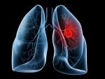 Studiu: Tratament nou impotriva cancerului pulmonar