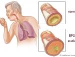 BPOC, una dintre cele mai mortale boli de plamani