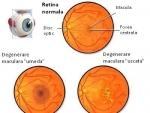 Cum putem tine sub control degenerescenta maculara a ochilor?