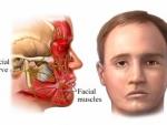 Cum putem sa contracaram cauzele paraliziei faciale?