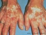 Pestisoara, planta folosita in tratamentul bolilor cutanate