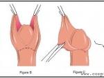 Ce influenta are circumcizia asupra barbatilor?