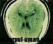 Examenul CT arată ca s-a adunat un strat de stinge  pe suprafaţa creierului.