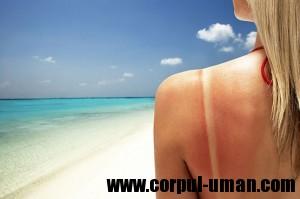 Cancer de piele