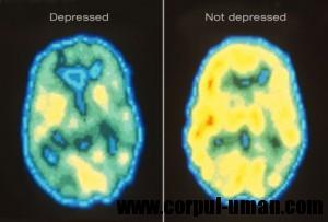 Depresia si lipsa somnului
