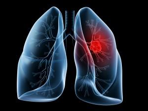 Tratament nou - cancer de plamani