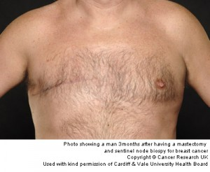 Cancer de san la barbati