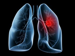 Tratament pentru cancer pulmonar