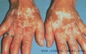 Tratament vitiligo