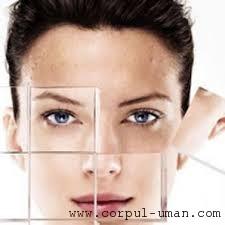 Hiperpigmentarea pielii