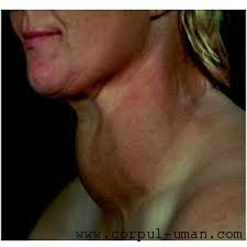 Gusa tiroida