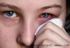 Alergie ochi